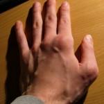 Skutki zbyt mocnych ćwiczeń, mogą być dla chorych na reumatoidalne zapalenie stawów, bardzo bolesne.